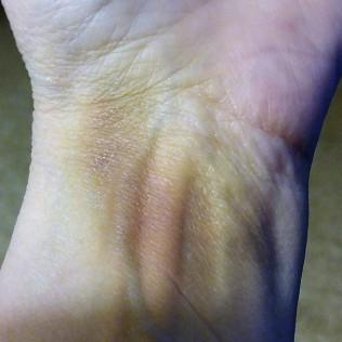 Banged up wrist 4 days later